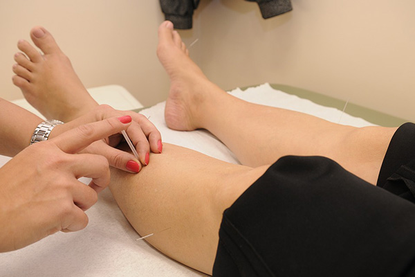 Acupuncturist Performing Acupuncture On A Patient's Legs.